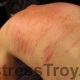 Fresh welts in Mistress Troy's New York City dungeon